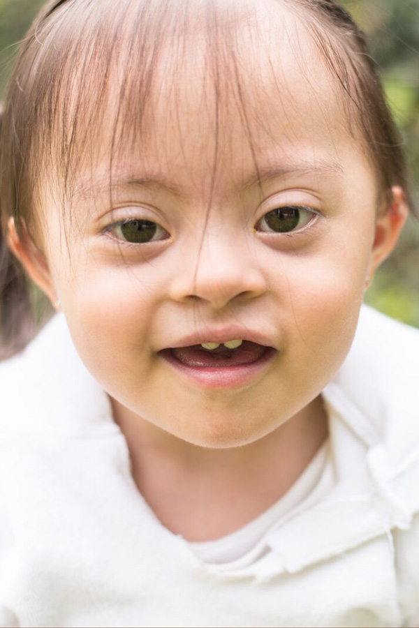 A little girl with a developmental disability